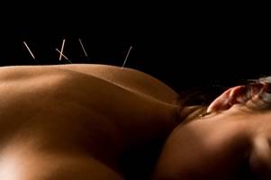 acupuncture hamilton